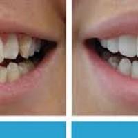 Cosmetic Dentist Melbourne