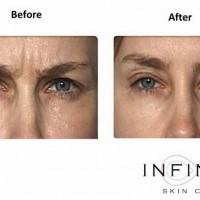 Infinity Skin Clinic