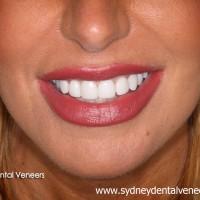 Sydney Dental Veneers