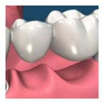Dentist Port Melbourne - Bay Street Dental Group