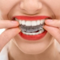 Teeth Whitening Toorak - Care Family Dental