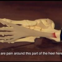 Sydney Heel Pain
