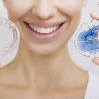 Best orthodontist in Richmond Hill - Smiles on Yonge Orthodontics