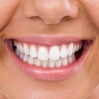 Newmarket Dentist