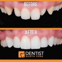 Dentist North York
