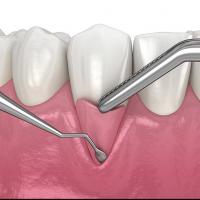 General Dentistry & Dental Implants Toronto