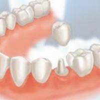 International Dental Implant Center
