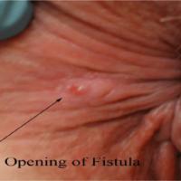 Laser Gastroenterology Clinic - T Nagar (Doctor for Piles, Fistula, Fissure, colorectal treatment)