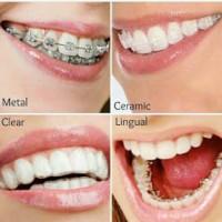 Neha Dental Clinics