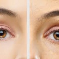Excellence Medical CosmeticClinic Dublin