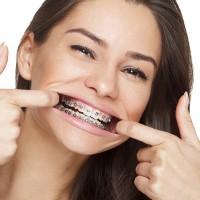 Dublin Orthodontist