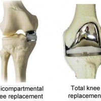 Affordable Hospital for Partial Knee replacement Surgery in India