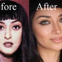 Plastic and Cosmetic surgery Lahore