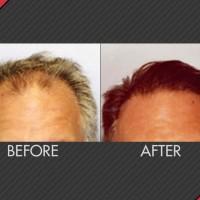 MAXiM Hair Restoration