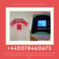 HD Hair Replacement