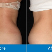 Non-Surgical Fat Removal Bergen County