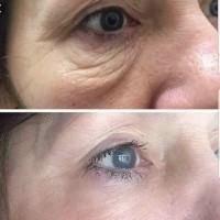 Skin Treatment WA