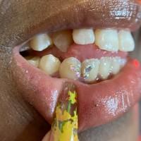 Tooth Dripp