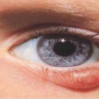 Oculoplastics, LLC