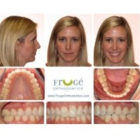 Fruge Orthodontics