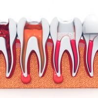 Salt River Dental Care