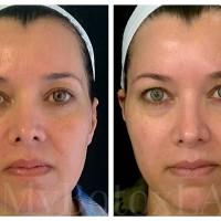 My Botox LA Med Spa