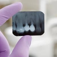 Dental Care Periodontal Gum